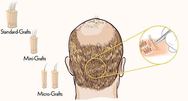 5 Ways to ensure that Your Hair Transplant Lasts long