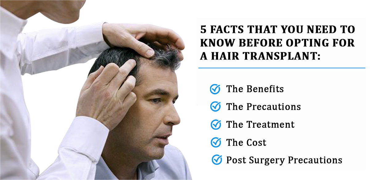 5 THINGS YOU SHOULD KNOW BEFORE YOU GO FOR A HAIR TRANSPLANT