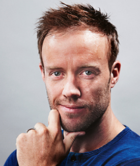AB de Villers after hair loss treatment
