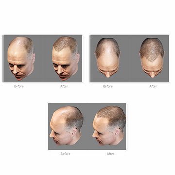Does Hair Transplants Really Long Forever?  Experts Talk