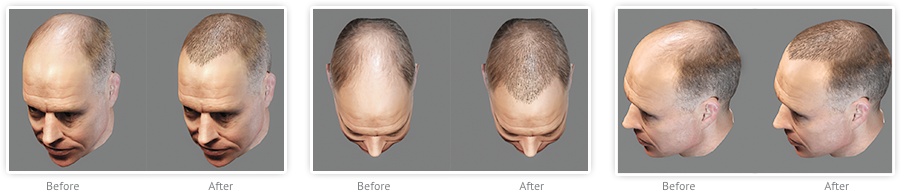 5 REASONS TO GO FOR AHS HAIR RESTORATION PROCEDURES