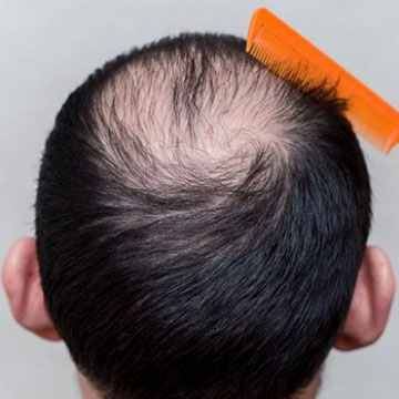 HAIR LOSS GENETIC OR ENVIRONMENTAL