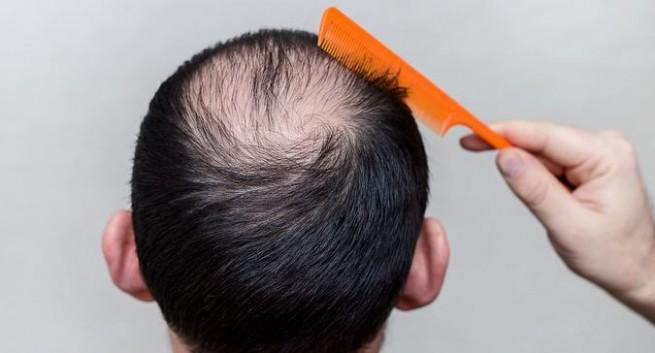 HAIR LOSS? GENETIC OR ENVIRONMENTAL?
