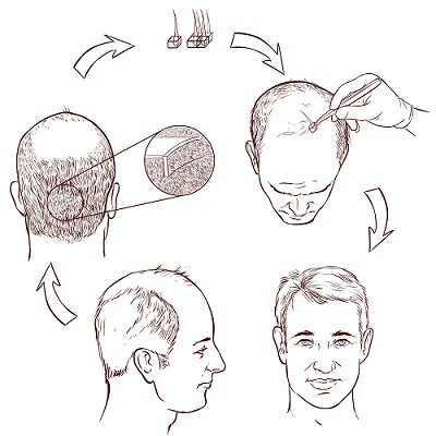 A Better Way to Counter the Hereditary Hair Loss