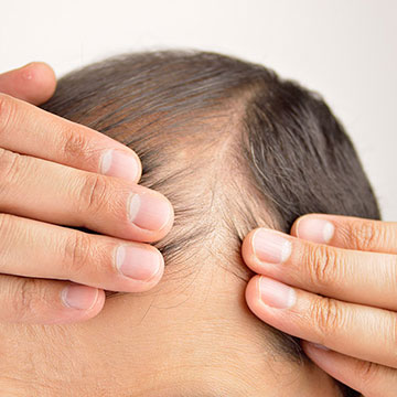 6 Prominent Causes of Hair Loss in Men