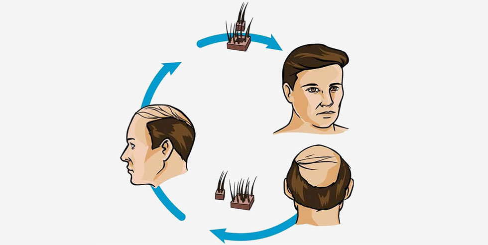 Cosmetic Hair Replacement