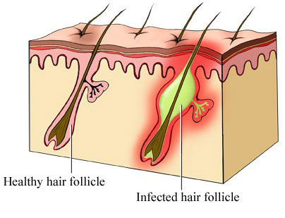 Everything You Need to Know About Follicles and Grafts