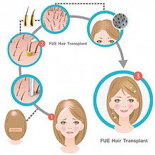 Things You Might Want to Know about FUE Hair Transplant Methodology