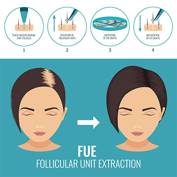 FUE Hair Transplant - Things You Need to Know