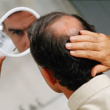 6 Proven Things To Recover Hair Loss