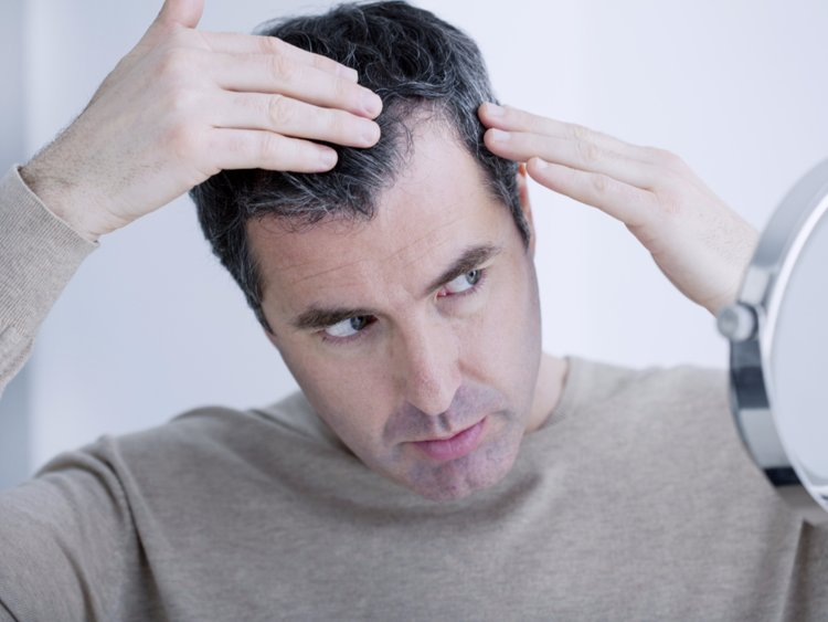 7 THINGS TO AVOID IF YOU HAVE HAIR LOSS