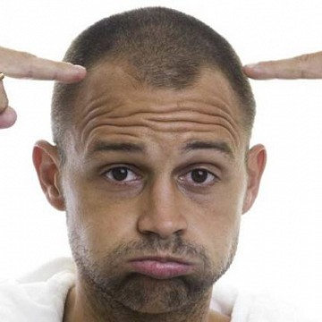 Male pattern baldness hair loss hair regrowth