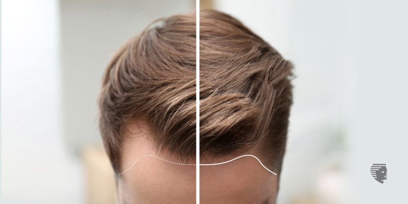 Hair Loss - Is It the Right Time for a Hair Transplant?