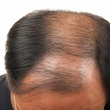 Reasons of hair loss