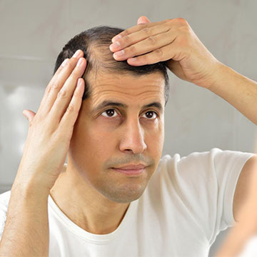 6 STIMULANTS OF HAIR LOSS YOU SHOULD KNOW ABOUT