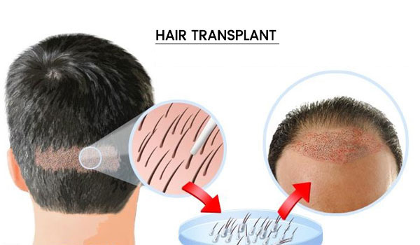 Hair Restoration Your Key to Get Back Your Lost Hair