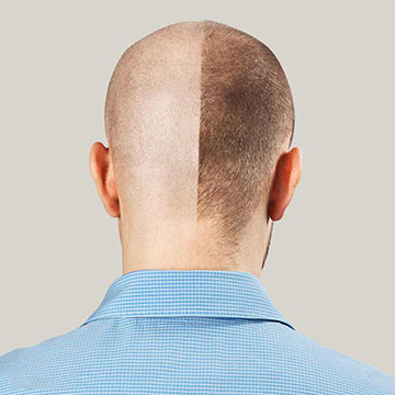 Can Hair Transplant Be the Permanent Hair Restoration Treatment