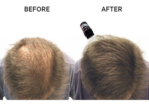 3 Crazy Outstanding Benefits of Using Magic Hair Thickening Fibers by Advanced Hair Studio
