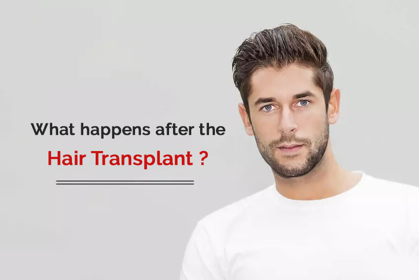 after effects of hair transplant you need to know about