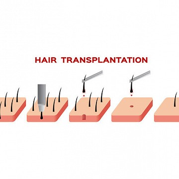 Is Hair transplant going to cost you a Bomb? Not Really!