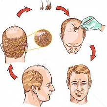 IS HAIR TRANSPLANT A PERMANENT Solution