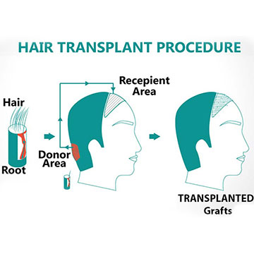 5 Things A Person Will Learn Post A Hair Transplant