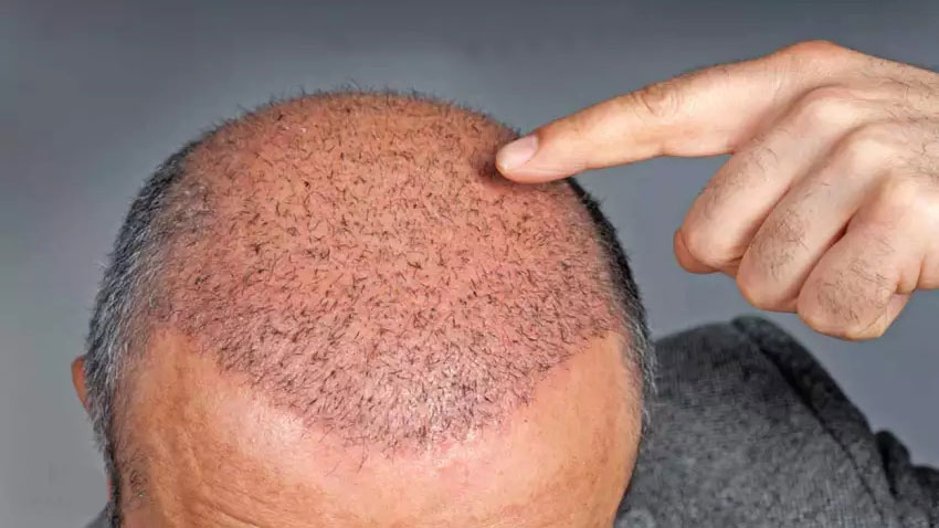 Can A Hair Transplant Restore Receding Temples & Hairline