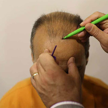What Is the Most Suitable Time in a Year to Go for a Hair Transplant