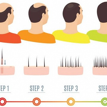 5 Qualities you really need in a Hair Transplant Service