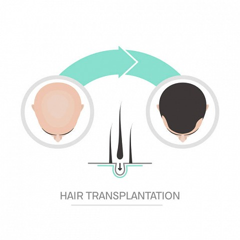 Hair transplantation 2 steps infographics