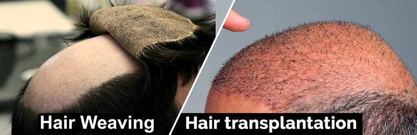 ongoing innovations in hair restoration surgery