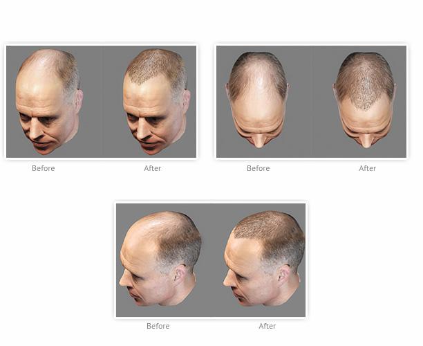 hair-transplants-really-long