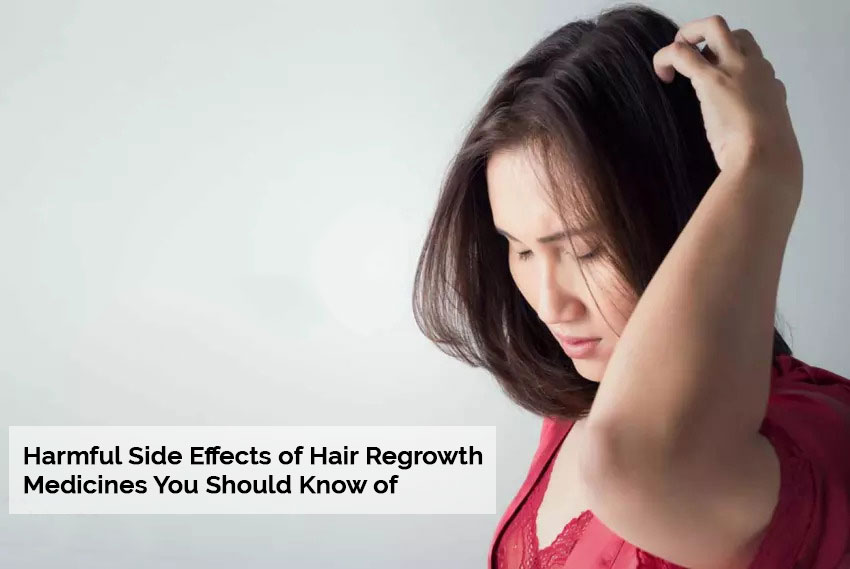Harmful Side Effects of Hair Regrowth Medicines You Should Know of