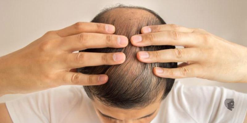 How can I stop my immediate hair fall?