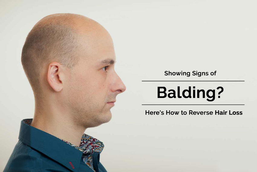 Showing Signs of Balding Here's How to Reverse Hair Loss