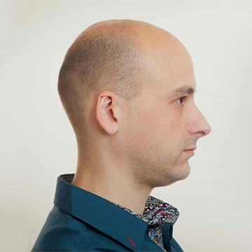 Showing Signs of Balding? Here