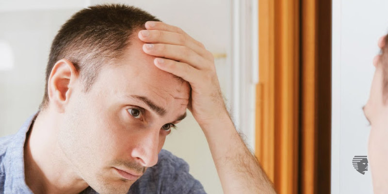 How to Stop Male Pattern Baldness?
