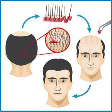 The Cost Of Hair Transplant And Everything Else You Need To Know