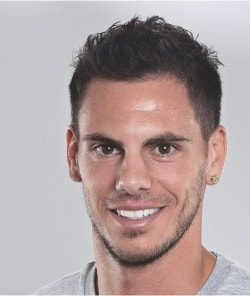 Jeremie Aliadiere after hair regrowth