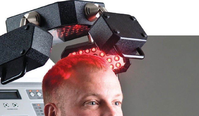 Reasons why you need an Advanced Laser Therapy for Retaining hair & Enhanced Growth