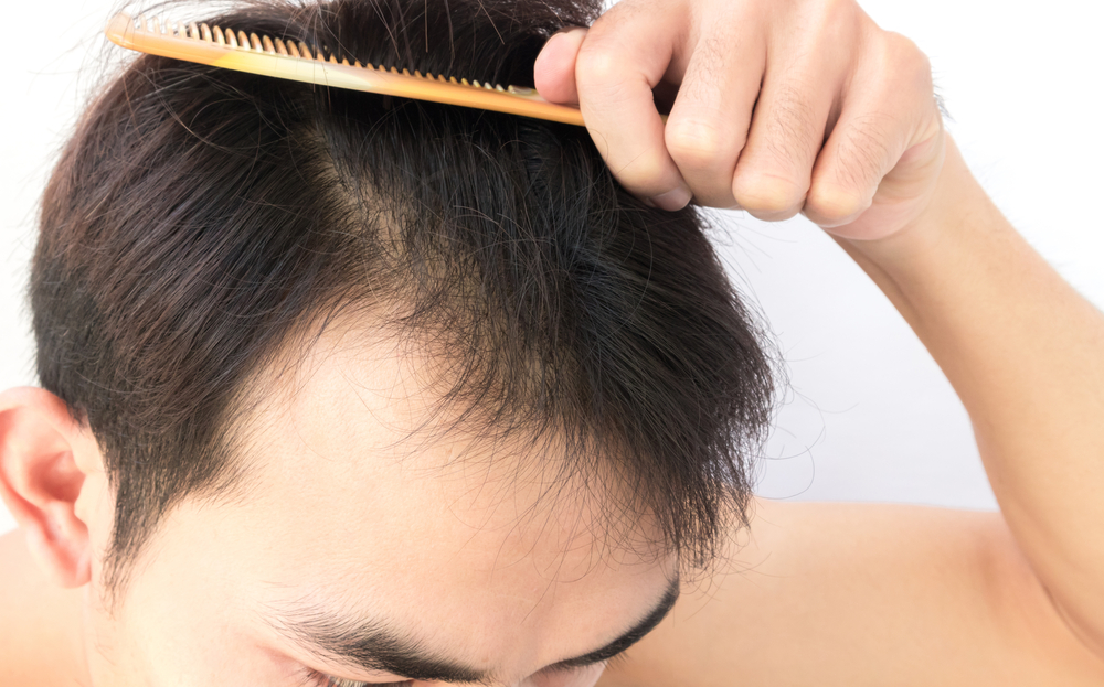 9 SIGNS TO IDENTIFY IF IT'S LIKELY FOR YOU TO GO BALD