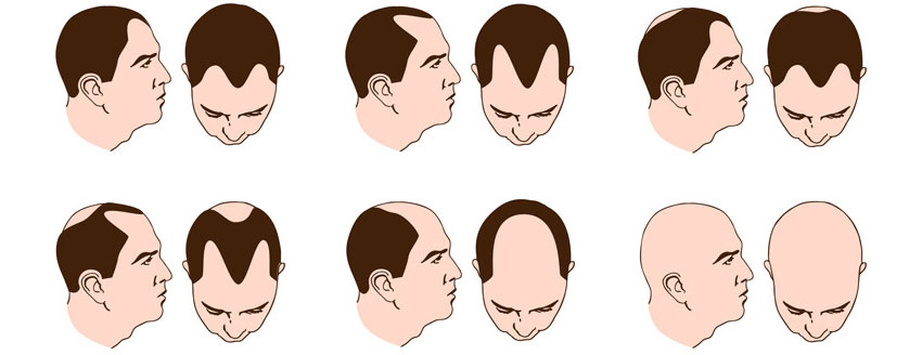UNCOVER 4 THEORIES BEHIND PATTERN HAIR LOSS