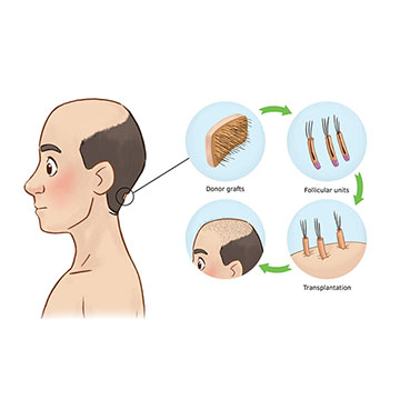WHAT IS THE BASIC BUILDING BLOCK FOR HAIR TRANSPLANTATION