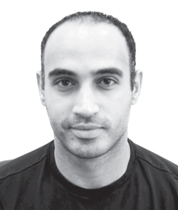 Mohamed - Before Hair Replacement