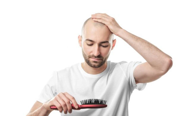 TOP 7 MYTHS ABOUT HAIR LOSS AND BALDING