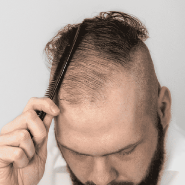 Top 3 Myths About Topical Finasteride Ahs India