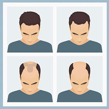 THE HAIR LOSS PATTERN IN MEN & HOW TO COUNTER IT BEFORE IT OVERPOWERS YOUR HAIR