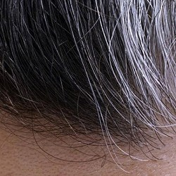 Premature Greying of Hair: Causes & Tips for Treatments