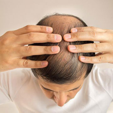 Experiencing Baldness At A Young Age? Here's How To Counter It!