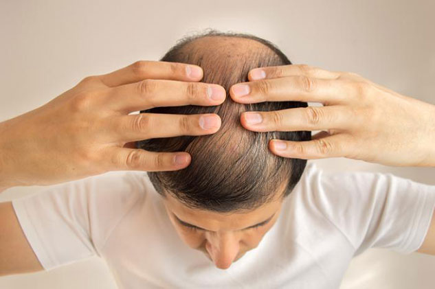 REASONS THAT LEAD TO BALDING